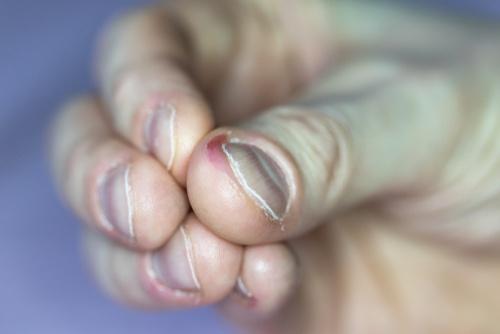 Gnawed fingernails