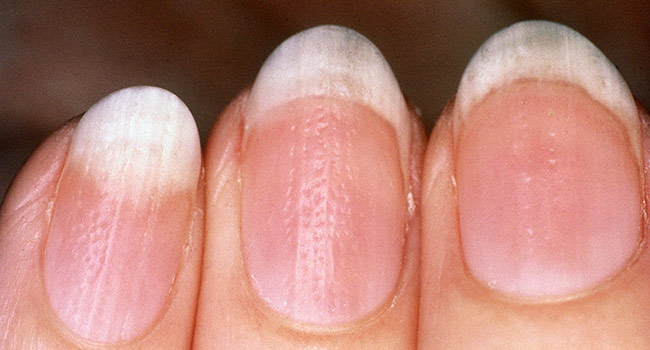 Pitted nails