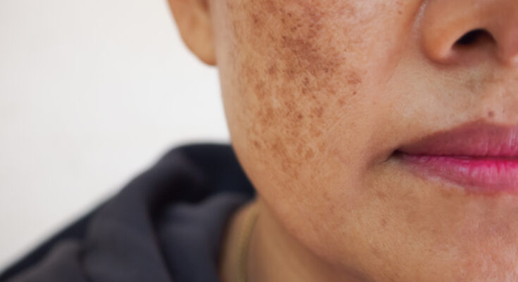 5 Ways to Cure Hyperpigmentation Naturally - Seniors Today