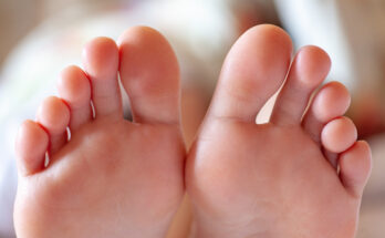 6 Home Remedies to Tackle Fungal Nail Infection - Seniors Today