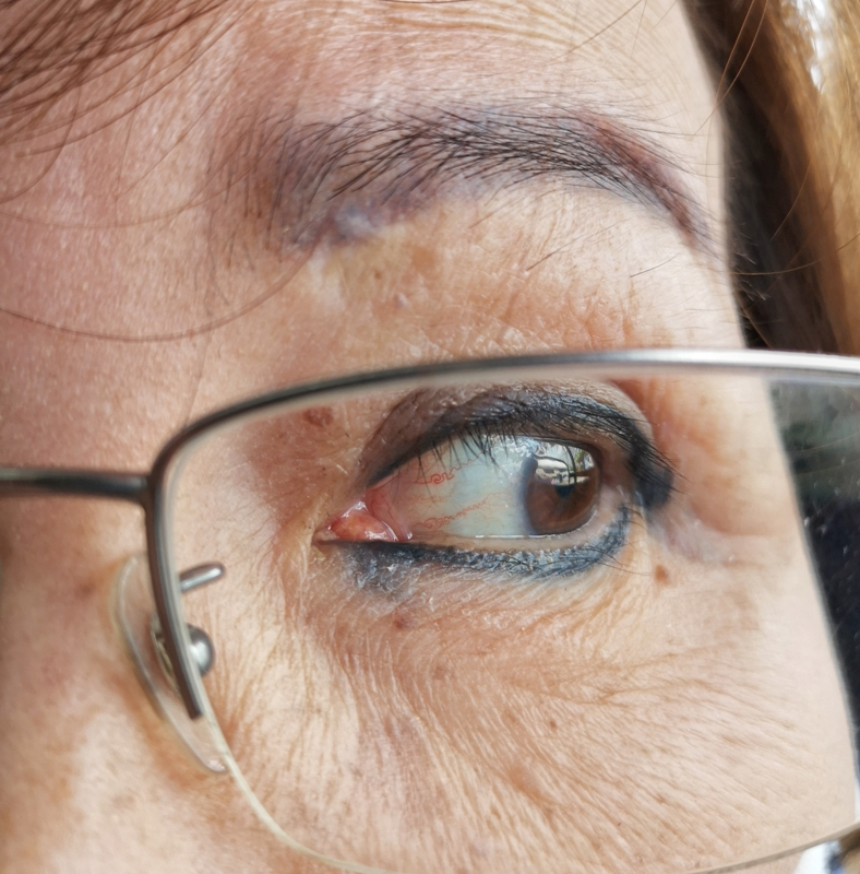 Older people should use a separate pair of near spectacles for near work more than 15 minutes, instead of bifocal or progressive glasses