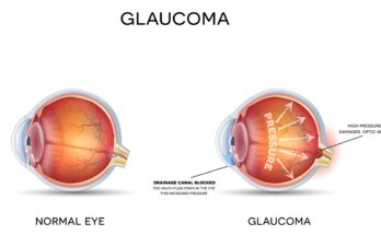 Is Glaucoma Preventable - Seniors Today