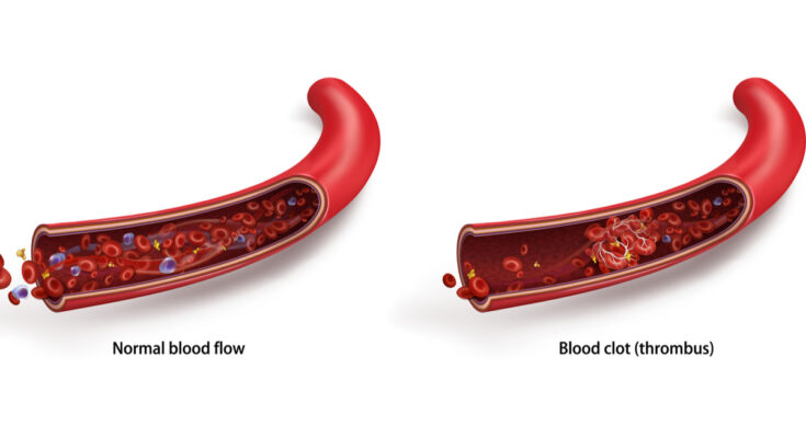 Recognising the signs of a blood clot - Seniors Today