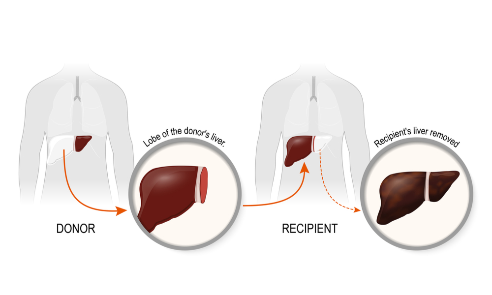 A graphic of a typical liver transplantation with the replacement of a diseased liver