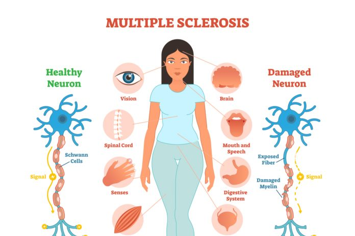 Multiple Sclerosis Linked To Infection In Adolescence – New Study